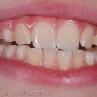 une semaine après le traitement, les dents sont réhydratées et les restaurations sont satisfaisantes au niveau esthétique et fonctionnel
