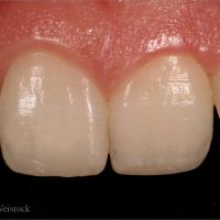 Résultat à 1 mois. On obtient une intégration esthétique naturelle des restaurations qui rétablissent des formes correctes associé à un délabrement tissulaire minimal.