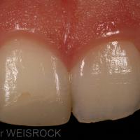 Résultat de l'éclaircissement interne à 5 jours. Ce dernier est réalisé à l'aide de perborate de sodium mélangé à du sérum physiologique. Une temporisation de 15 jours avec de l'hydroxyde de calcium doit être effectué avant la restauration en composite. La gingivectomie est ensuite réalisée.