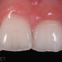 Fig 8 : Le résultat final après Erosion/Infiltration (Icon, DMG) et composite émail (Astéria, Tokuyama) en situation clinique habituelle, c'est à dire avec la présence du film salivaire à la surface vestibulaire des dents antérieures. La lésion blanche a complétement été masquée par l'indice de refraction de la résine d'infiltration (identique à l'émail sain) et un composite émail lumineux a été placé pour redonner la convexité vestibulaire très légerement altérée par le sablage et l'érosion en profondeur.