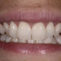 Fig 1 et Fig 2 : la vue intra-orale ainsi que le cliché du sourire mettent en évidence un manque de présence des canines.