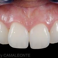 Fig 10 : La facette est alors remplies avec du composite dentine réchauffé puis appliquée sur la canine et les excès sont éliminés. La photo montre la restauration positionnée sur la 13, le même protocole est réalisé pour la 23.