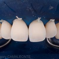 Fig 12 et 13 : Après sablage, un système adhésif de type MR3 est utilisé. La 1ère étape consiste en un mordançage à l'acide orthophosphorique à 37% pendant 20 secondes