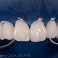 Fig 15 : composites directs sur les 4 incisives avant les étapes de finition et de polissage.