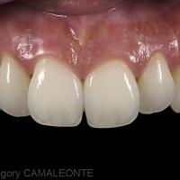 Fig 1 et 2 : la vue intra-orale ainsi que le cliché du sourire mettent en évidence un manque de présence des canines.