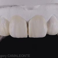 Fig 5 : Le laboratoire peut alors faire un wax-up selon les informations fournies par le diagnostic esthétique (Laboratoire Gilles Philip).