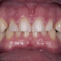 Fig 1 : la photographie du sourire met en évidence les proportions dysharmonieuses des 4 incisives par rapport au sourire.