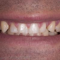 Fig2 : La photographie intrabuccale en OIM montre le déséquilibre dans la composition dentaire.
