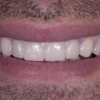 Fig 4 : le wax up réalisé au laboratoire est essayé directement en bouche grâce à une gouttière en silicone confectionnée sur le modèle et dans laquelle on injecte une résine de type bis-acryl. Il s'agit ici de la confection de Masques ou Mocks up. C'est à cette étape, réversible, que nous obtenons l'accord du patient. La décision est alors prise de réaliser des restaurations en céramique : facettes sur 11/12/21/22 et des restaurations partielles sur 13 et 23. Une empreinte en double mélange est effectuée et envoyée au laboratoire.
