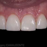 Fig 5 : les facettes sont essayées puis collées individuellement sous champ opératoire. Les restaurations ont été préalablement mordancées à l'acide fluorhydrique et silanées. A noter que la surface des préparations étant essentiellement amélaire, un sablage ainsi qu'un mordançage à l'acide orthophosphorique à 37 % pendant 30 secondes sont nécessaires avant l'application de l'adhésif. Le collage est effectué avec une résine composite fluide photopolymérisable pour s'assurer du parfait repositionnement des facettes. La séquence de collage est la suivante : incisives centrales, canines puis incisives latérales.