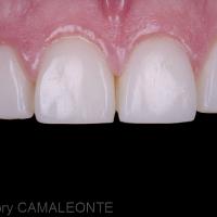 Fig 6 et 7 : résultat post-opératoire à 18 mois. On constate une intégration biomimétique satisfaisante ainsi qu'une stabilité des tissus parodontaux. Les joints de collage sont invisibles, les espaces comblés et des proportions harmonieuses retrouvées.
