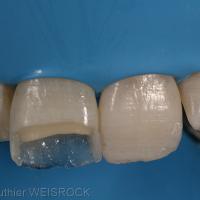 Figure 10 : Réalisation du mur palatin à l'aide d'une masse émail. Notez la finesse et la translucidité de celui-ci. Réalisation des faces proximales en masse émail permettant de transformer une cavité « complexe » en cavité simple. Une seule masse dentine recouverte d'une masse émail d'une épaisseur de 0,7 mm terminera la stratification. La restauration composite du bord libre et de l'angle distal de la 21 ne nécessite qu'une masse émail afin de lui donner de la translucidité.