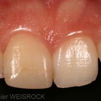 Figure 1 : Situation clinique initiale : 11 dyschromiée et restaurée à l'aide d'un composite débordant sur la face vestibulaire. On peut noter les malpositions des incisives, le patient refusant une solution orthodontique.