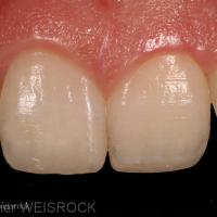 Figure 11 : Résultat à 1 mois. On obtient une intégration esthétique naturelle des restaurations qui rétablissent des formes et un état de surface corrects associé à un délabrement tissulaire minimal. Néanmoins on peut craindre une récidive de la dyschromie qui nécessitera soit un éclaircissement par voie externe soit la réalisation ultérieure d'une céramique partielle collée.