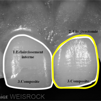 Figure 8 : Plan de traitement : éclaircissement interne de la 11 suivis d'une évaluation du résultat qui conditionnera la prise de décision définitive entre un composite et une céramique collée. Pendant l'éclaircissement, une gingivectomie est réalisée au niveau de la 21. Les composites sur les 11 et 21 seront ensuite réalisés.