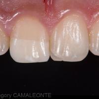 Fig 5 : le fragment s'adapte parfaitement à la dent fracturée