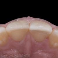 Fig 6 : le fragment s'adapte parfaitement à la dent fracturée