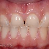 Fig 1 : situation initiale, la patiente présente les cicatrices d'un ancien phénomène d'érosion dentaire stabilisé (cause intrinsèque : épisode de régurgitation volontaire) couplé à une consommation excessive de soda (cause extrinsèque). La perte tissulaire concerne principalement le bloc incisif maxillaire en l'absence de perte de D.V.