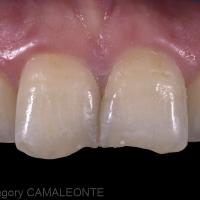 Fig. 1 : une patiente se présente à la consultation dans le but de restaurer les bords libres de ses incisives centrales maxillaires. Nous lui proposons des restaurations directes en composites.