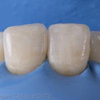 Fig. 14 : l'émail vestibulaire est apposé et photopolymérisé sous un gel de glycérine