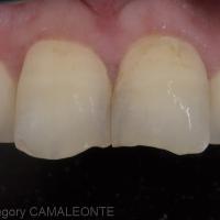 Fig. 3 : la photo en lumière polarisée permet de dresser une cartographie colorimétrique des dents à restaurer