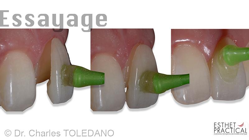 collage_facettes_ceramique_006