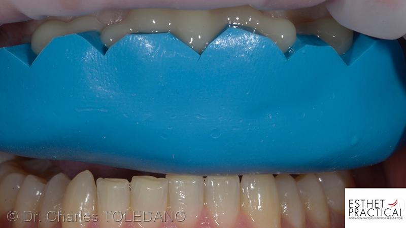 preparation_temporisation_facettes_ceramique_016