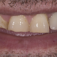 4 dents