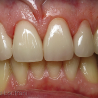 Après traitement à l'acide fluorhydrique et assemblage par collage au Variolink Esthetic® (Ivoclar)
