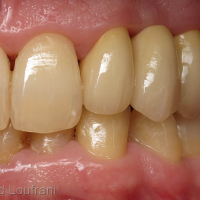 Bridge Forma zircone sur dents vivantes