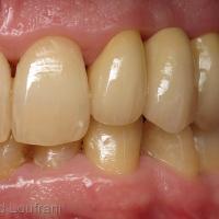 Bridge Forma zircone sur dents vivantes