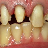 Après dépose de la 11, préparation des facettes de 15 à 25 et éclaircissement des dents mandibulaires