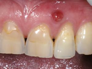 fistule en regard d'une dent traitée endodontiquement