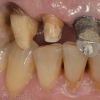 Situation initiale, la tête du tenon vissé est visible par transparence dans la restauration coronaire au composite.