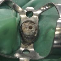 Noter le faible délabrement coronaire : on peut distinguer le ciment de scellement du tenon et le contour du canal.