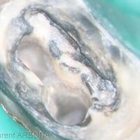 Un fois le ciment de scellement éliminé, il faut désobturer les canaux, on remarque en distal l'action iatrogène d'une fraise lors du traitement initial