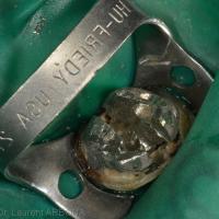 Séparation des deux tenons de l'ancrage sous digue et sous aides visuelles (loupes ou microscope)