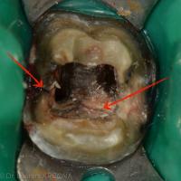 Après la dépose d'un tenon anatomique coulé il arrive de constater une fracture non radio-visible