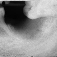 Radiographie de contrôle à 6 semaines post-extraction