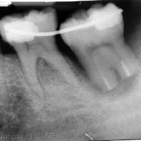 Radiographie post-opératoire
