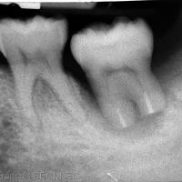 Radiographie après retrait de la contention à 3 semaines