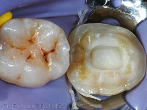 Détail de la préparation coronaire avant assemblage de la pièce prothétique