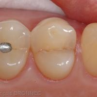 L'examen des surfaces dentaires nettoyées et séchées sous aides optiques montre un trait de fêlure mésio-distal au niveau de la face occlusale de la dent n°14.