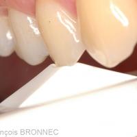 Le test de morsure à l'aide d'un enfonce-couronne est réalisé cuspide par cuspide. Il permet d'identifier la dent causale en reproduisant la symptomatologie évoquée (une douleur vive au relâchement cuspidien).
