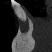Fig 2 : coupe transversale passant par la dent n°41