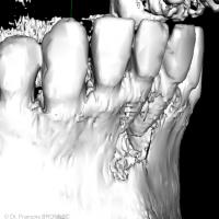 Fig 4 : reconstruction de surface