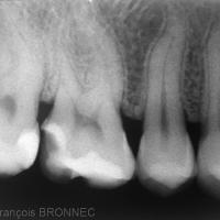 Figure 11-Radiographie illustrant la faible épaisseur de la préparation au niveau occlusal