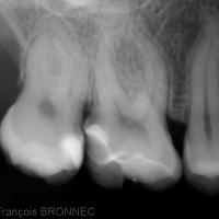 Figure 24-Radiographie de contrôle à un an