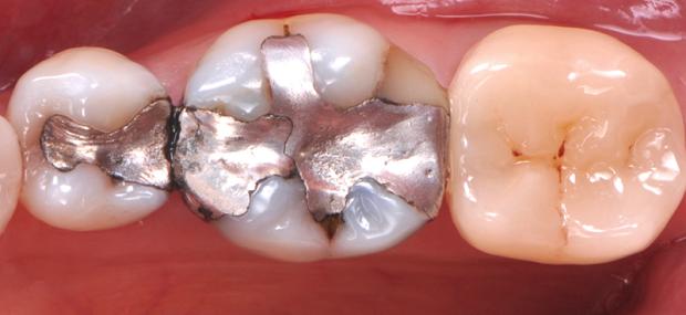 Situation initiale. La 36 est en pulpite aigüe irréversible, probable voie de nécrose. La douleur est permanente, accentuée par le froid et le chaud, ainsi que la pression. Les symptomes ne laissent pas de place à une tentative de préservation pulpaire. Un traitement endodontique doit être réalisé. Bien que les parois vestibulaires et linguales soient fragilisées, l'option restauratrice la moins mutilante doit être envisagée. Pourra-t-on éviter la couronne malgré la dévitalisation?