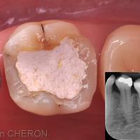A l'issue du traitement, les parois en CVI-MAR sont préservées et un Cavit® (3M-ESPE) est mis en place en temporisation. On perçoit bien sur cette vue, le surplomb des cuspides linguales et le risque de fracture encouru.